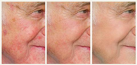 Устранение дефектов кожи лица на фотографиях. Краснодарфото.ру, (861) 944 1345